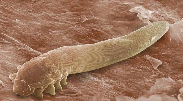 Demodex folliculorum Ungex