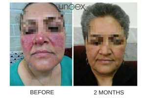 2-fbs-gex-testimonial-demodex-treatment | Ungex