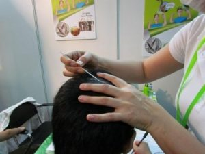 Cosmobeaute-mite-solutions-hairloss-22-960x300 | Ungex | Demodex