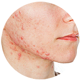 acne1 | Ungex | Demodex