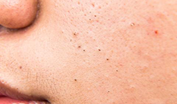 blackhead_face-large | Ungex | Demodex