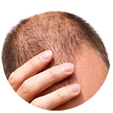 hair-loss1 | Ungex | Demodex