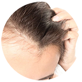 hair-thinning1 | Ungex | Demodex