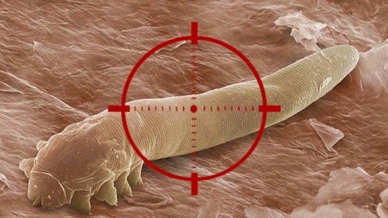 Target Demodex Mites