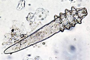 Microscopic mite | Ungex