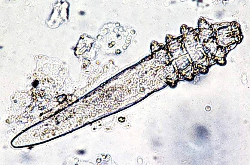 Microscopic mite | Ungex