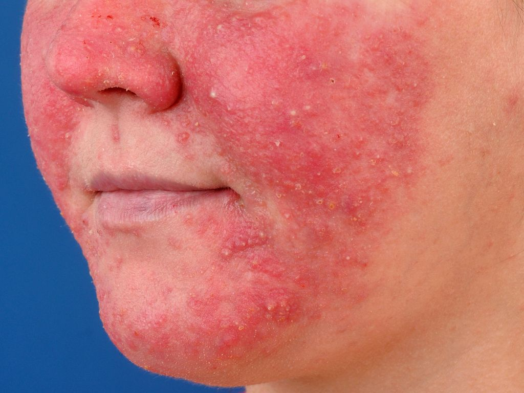 rosacea-10 | Ungex | Demodex