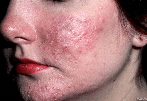 rosacea-Ungex | Demodex