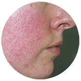 rosacea1 | Ungex | Demodex
