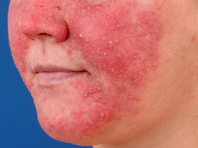 rosacea10 | Ungex | Demodex