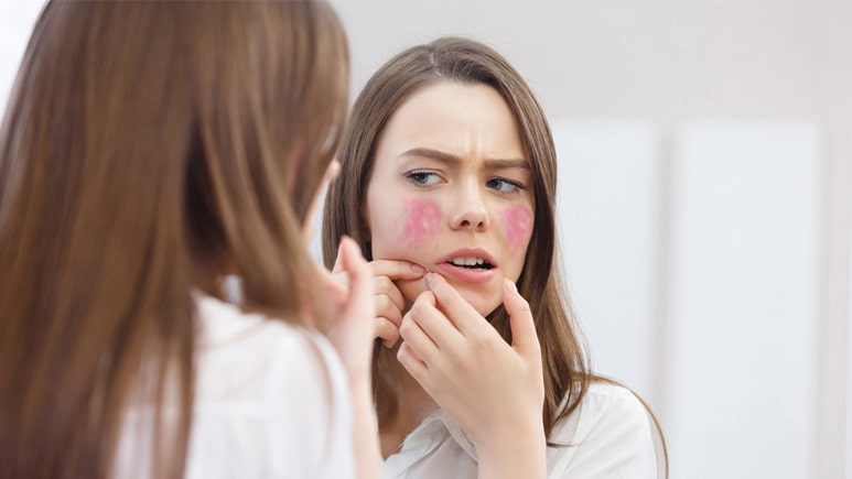 Causes of Rosacea | Ungex