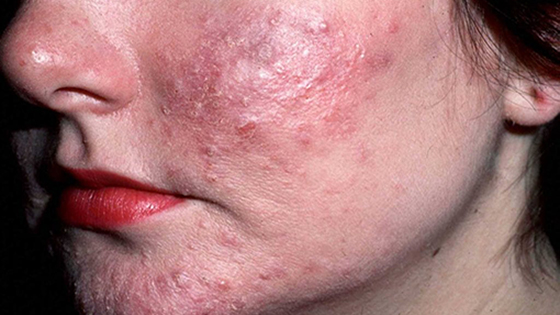 Demodex Rosacea | Ungex
