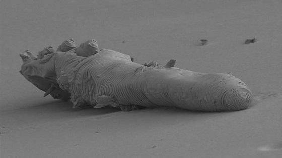 signs of dead demodex mite | Ungex
