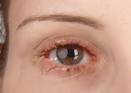 Symptoms of Blepharitis1 | Ungex