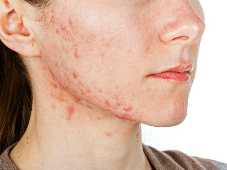 acne ungex