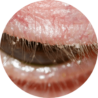blepharitis-circled-ungex