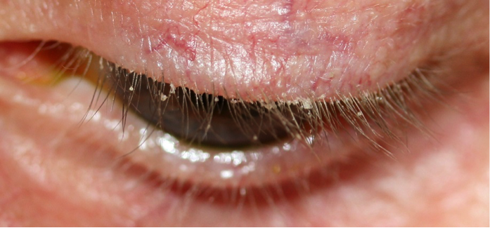 what is blepharitis | Ungex