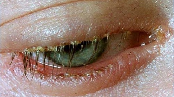 Eyelash mite | Ungex