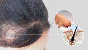 Alopecia | Demodex Treatment | Ungex