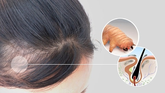 Alopecia | Demodex Treatment | Ungex
