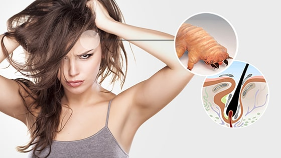 Remove Demodex Period | Ungex