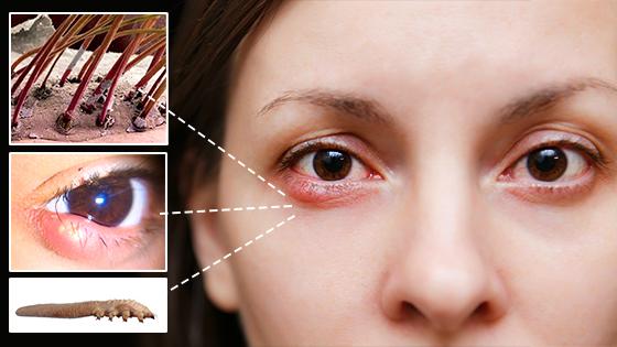 eyelash mites | Ungex