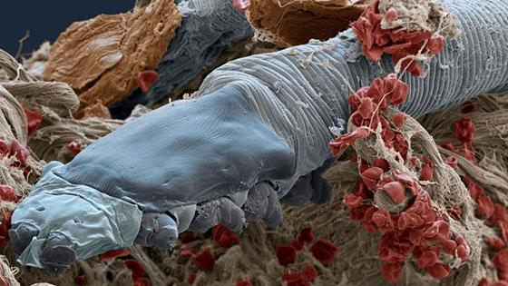 Demodex folliculorum   Ungex