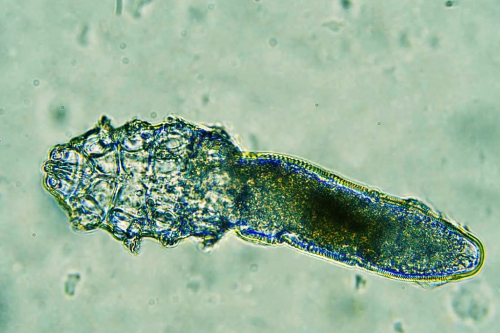 Demodex Mites on Children