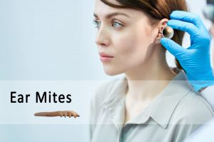 ear mites in humans | Ungex