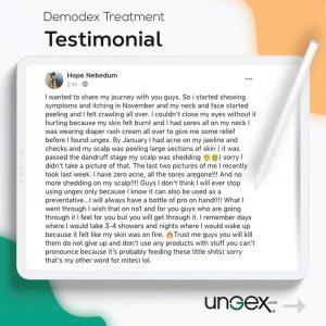 Testimonial | Ungex
