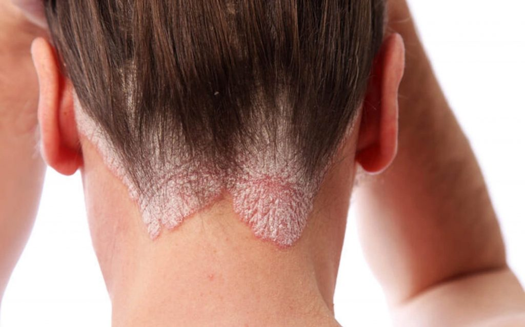 seborrheic dermatitis | Ungex