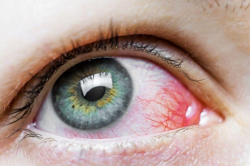 Eye mite