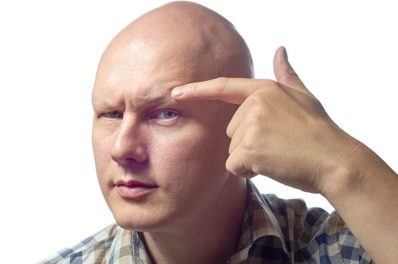 alopeica universalis