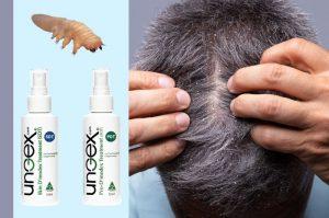 dandruff cause hair loss | ungex