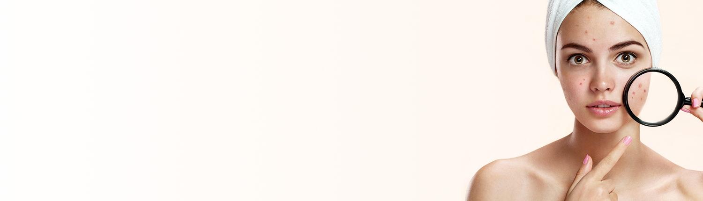 Acne-and-pimples-ungex-1500x430_60a2d64065c4b163c63a8afcab3af189 | آنجکس | دمودکس | مایت