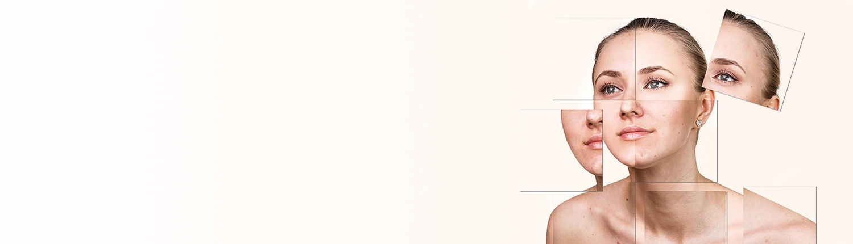 Rosacea-1500x430 | آنجکس | دمودکس | مایت