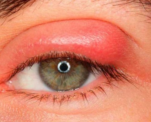 blepharitis-eye | آنجکس | دمودکس | مایت | بلفاریت