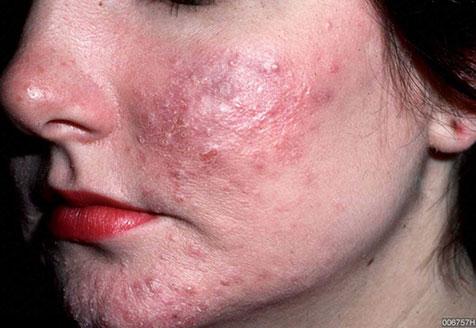 آنجکس | دمودکس | مایت روزاسه ، آکنه، مشکلات پوست و مو، تکنولوژی دمودکس مایت سولوشن