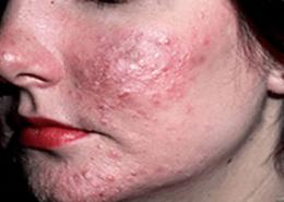 آنجکس | دمودکس | مایت | روزاسه ، آکنه، مشکلات پوست و مو، تکنولوژی دمودکس مایت سولوشن