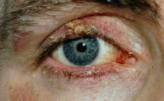 demodex-blepharitis | آنجکس | دمودکس | مایت