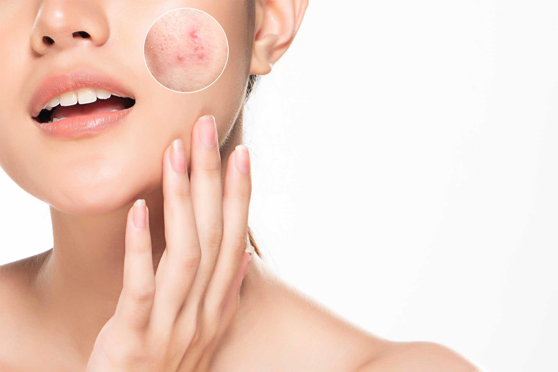 مشکلات پوست و مو | آنجکس