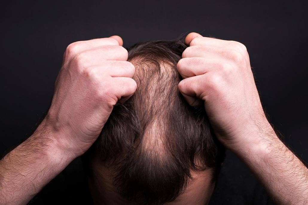 آلوپسی یا ریزش مو | آنجکس