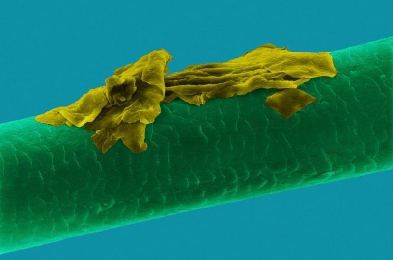 شوره زیر میکروسکوپ