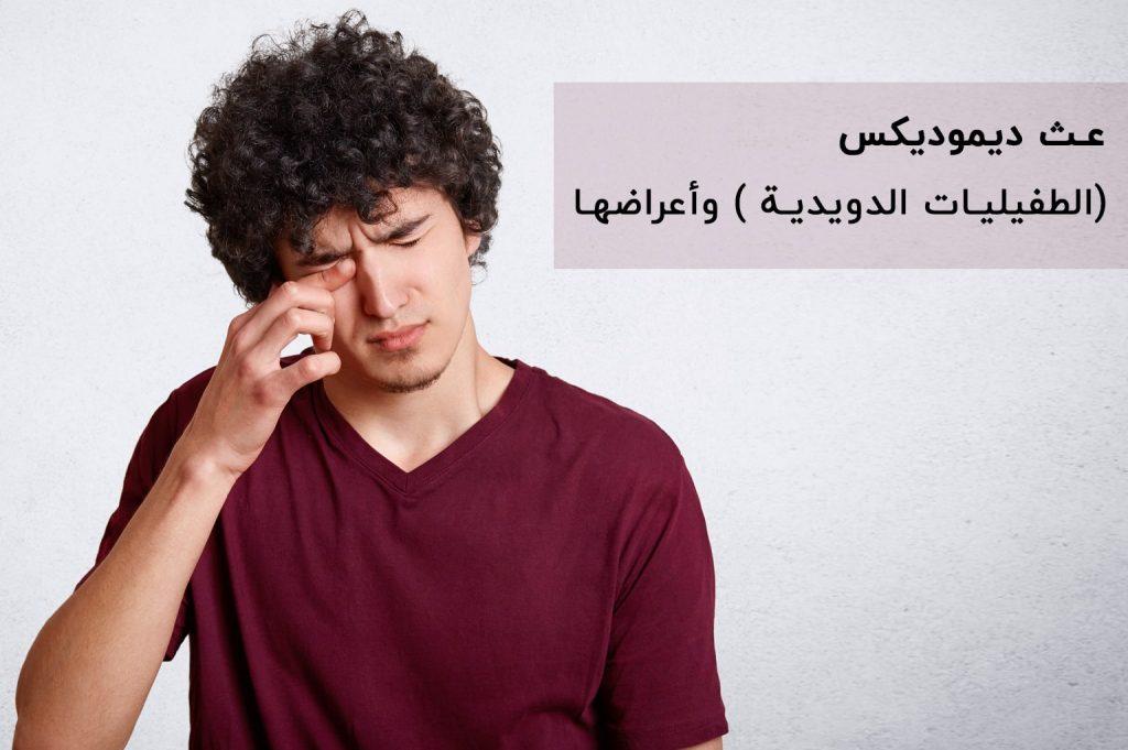 عث ديموديكس (الطفيليات الدويدية ) وأعراضها | انجکس