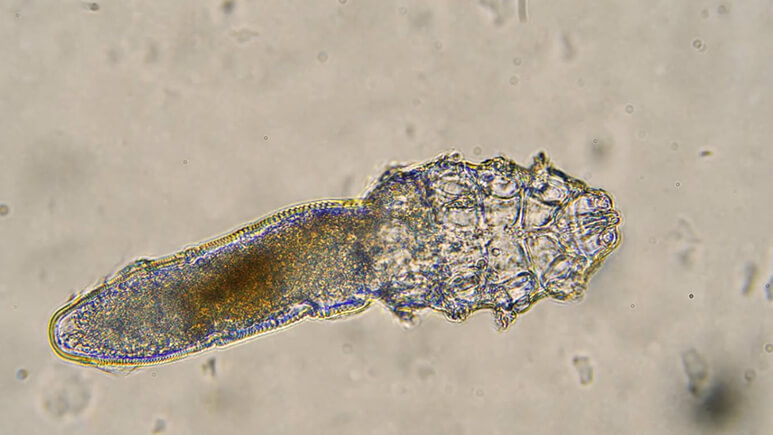 Demodex Mites Under The Microscope | Ungex
