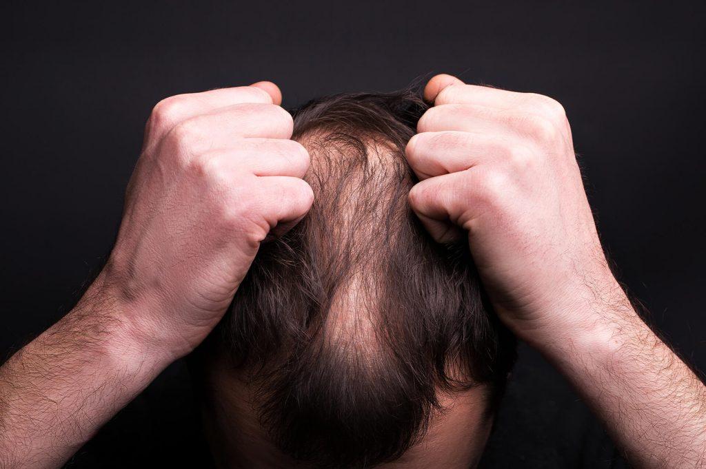 Alopecia | Ungex