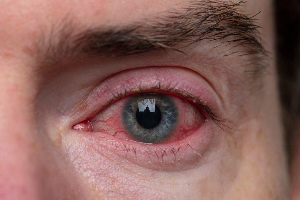Blepharitis | Ungex