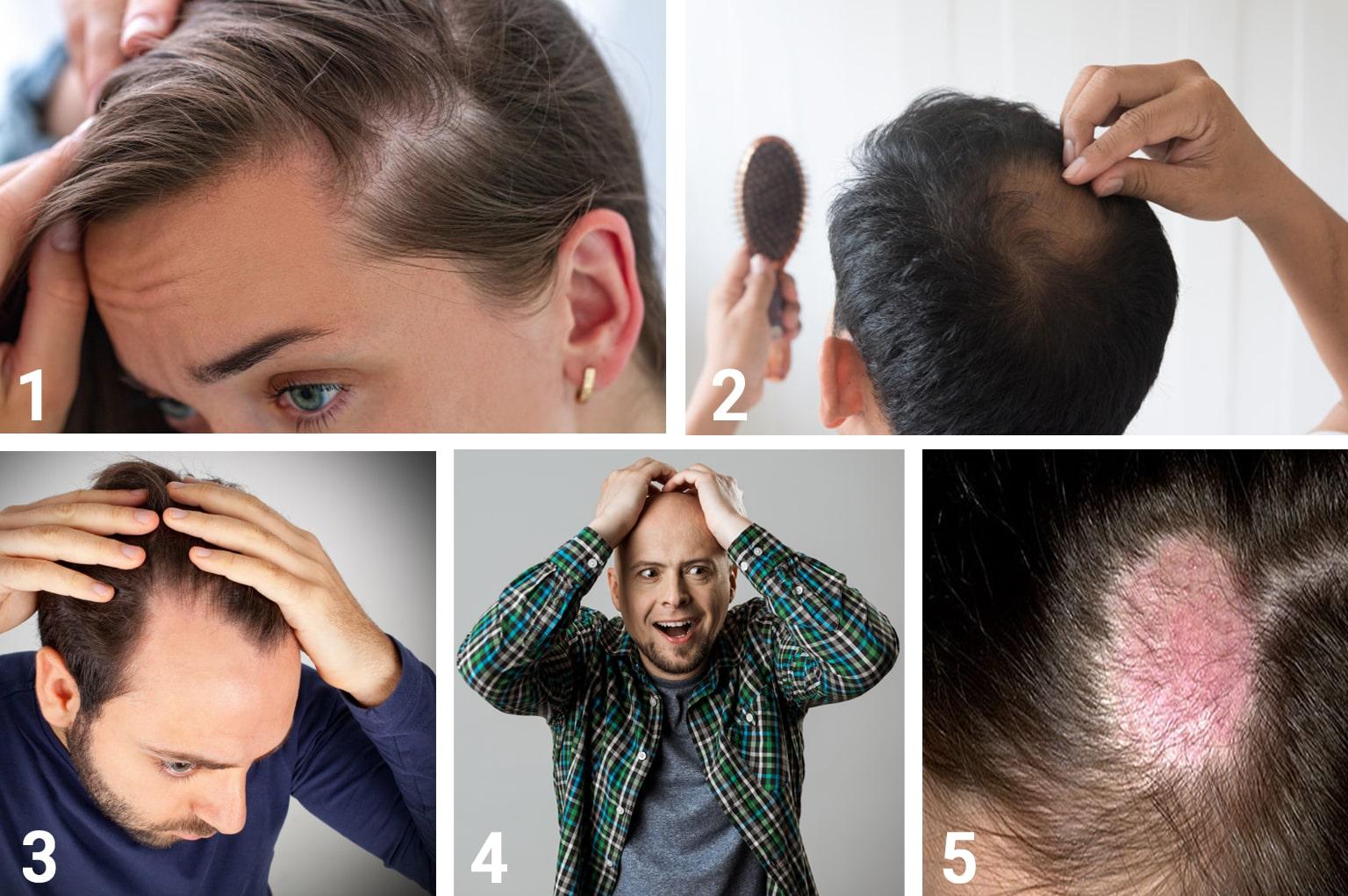 أعراض تساقط الشعر | انجکس
