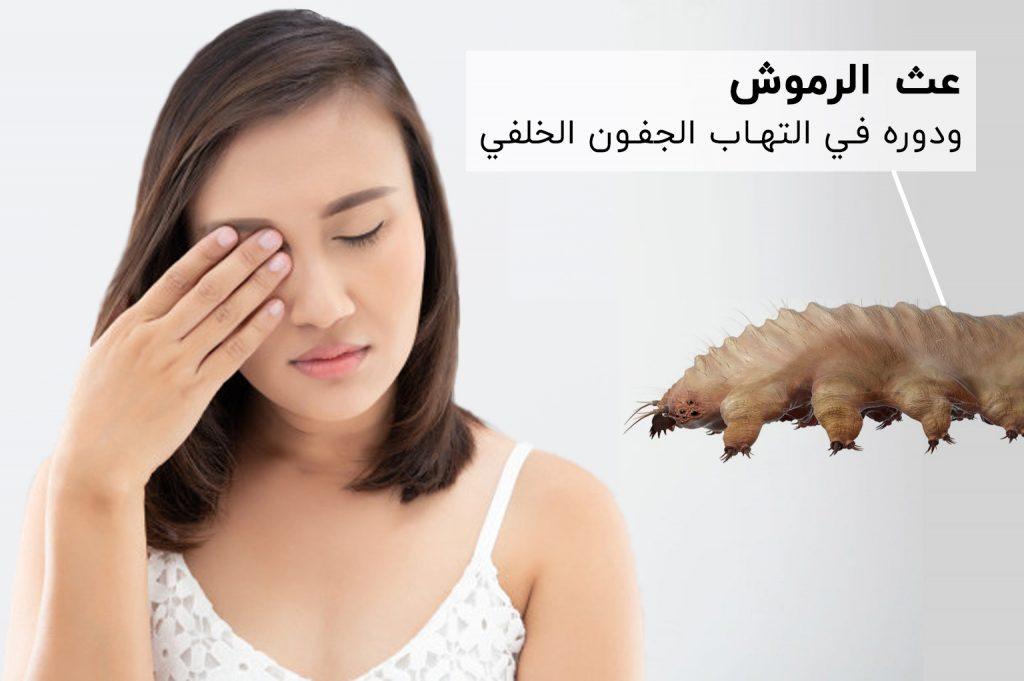 عث الرموش ودوره في التهاب الجفون الخلفي