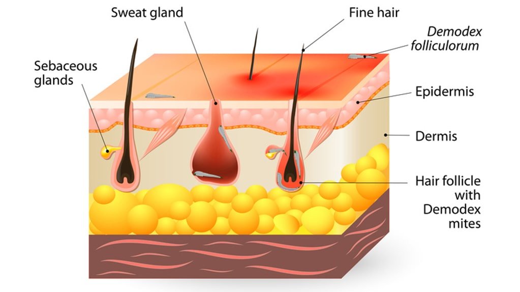 01-what-are-demodex-mites-and-what-role-do-they-play-in-acne.jpg.7aa8a397698678807a75d55b19b55146-1024x631-1